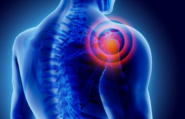 Shoulder pain treatment RAMAKRISHNA RACHAPUTI